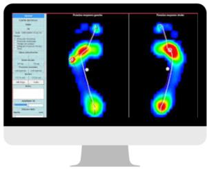 Imagerie illustrant l'examen baropodométrique réalisé lors du bilan podologique pour semelle orthopédique.