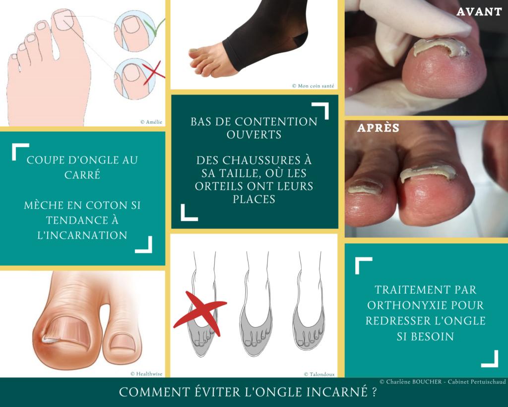 Ongle incarné - les différentes prévention pour diminuer le risque d'ongle incarné.